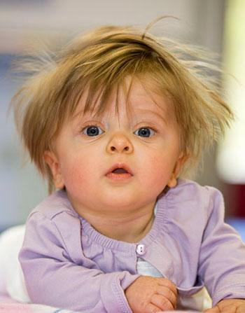child with a rare disease